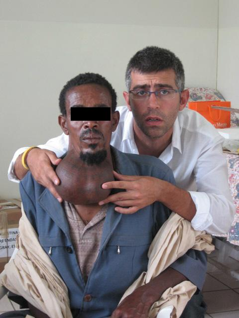 sale iodato - gozzo in uomo etiope