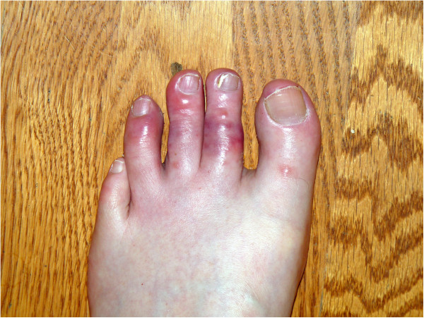Geloni ai piedi: le dita sono gonfie, traslucide e rosso-violacee.