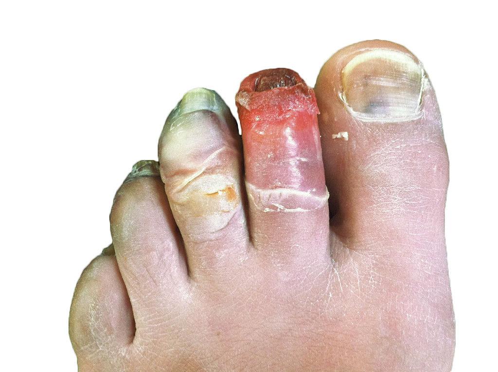 Geloni al quarto stadio: le dita sono congelate, le lesioni sono profonde. Credits: Wikipedia