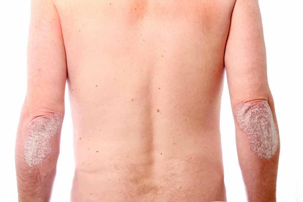 Fototerapia - psoriasi volgare dei gomiti