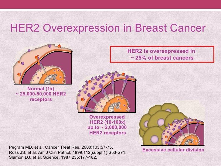 Terapie mirate - Il recettore HER-2 è sovraespresso nelle cellule tumorali del seno