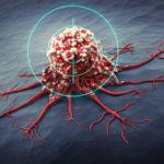 Terapie mirate: la vera rivoluzione in oncologia