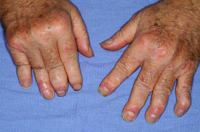 Psoriasi estesa alle articolazioni delle dita, ovvero artrite psoriasica