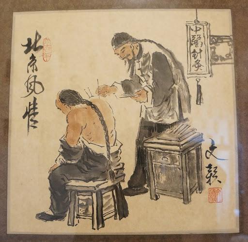 Agopuntura nella Medicina tradizionale cinese