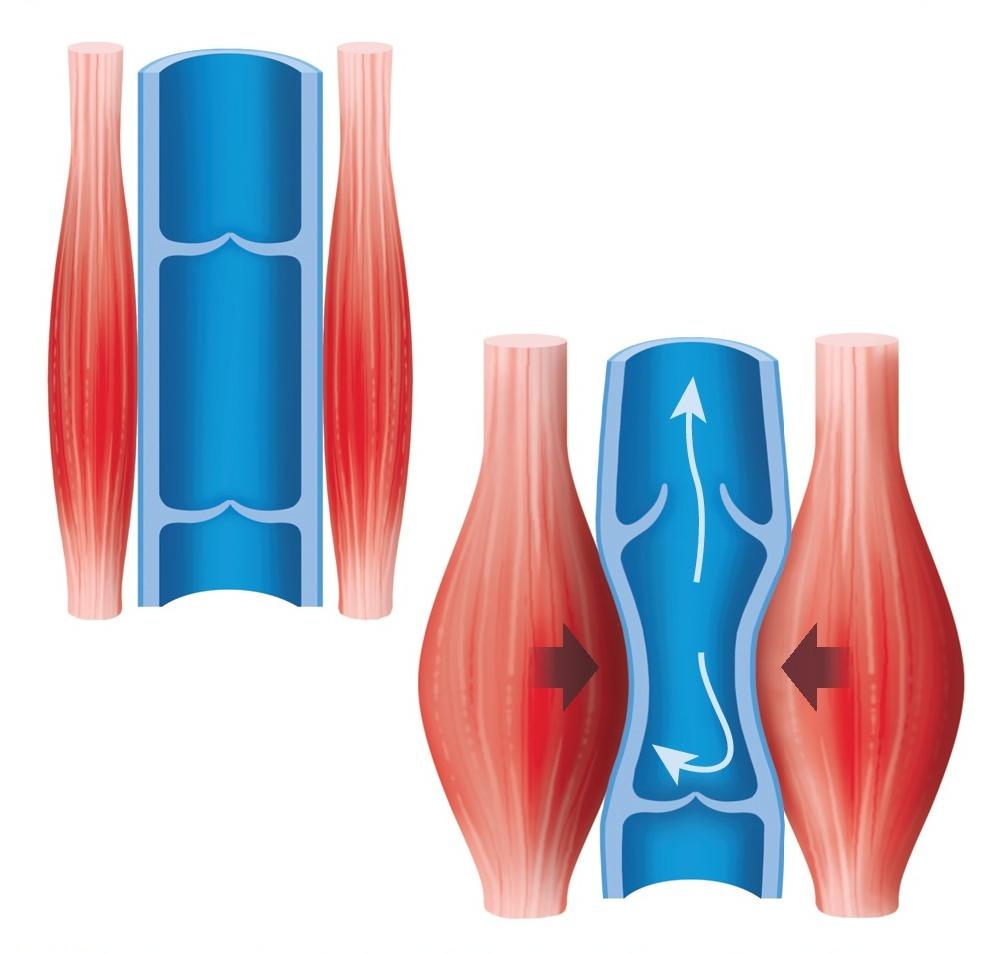 Pompa muscolare e insufficienza venosa