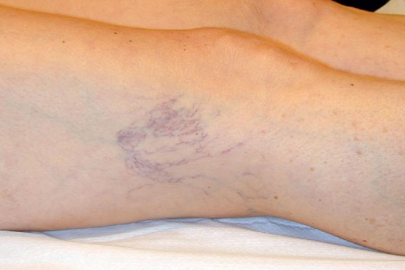 Vene a tela di ragno - insufficienza venosa cronica