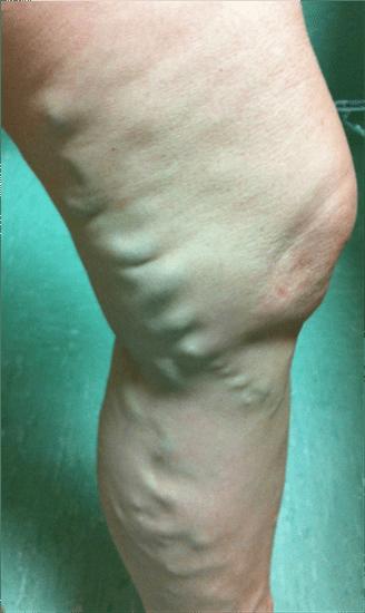 Insufficienza venosa cronica - Vene varicose