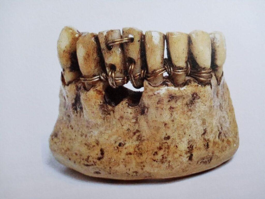 Medicina dello Stival e dell'Età Romana - Protesi etrusca